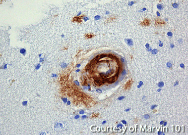 Amyloid Beta Plaque