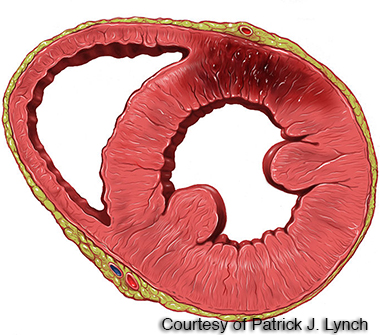 Cross Section of Heart Attack