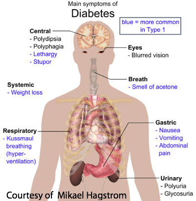 Major Symptoms of Diabetes